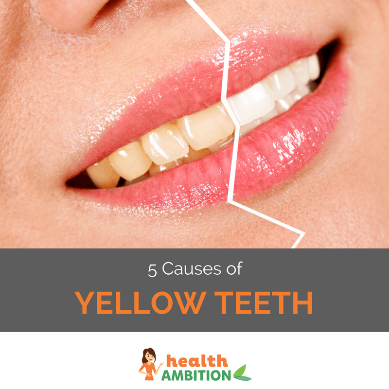 """A smiling woman's teeth in a before-after style image, with the left side of her teeth being yellow, while the right side is white. The caption says """"5 Causes of Yellow Teeth."""""""