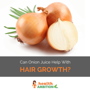"""Onions with the title """"Can Onion Juice Help with Hair Growth?"""""""